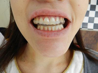 顎関節症治療用・歯ぎしり治療用マウスピース