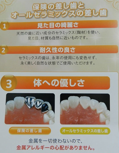 保険の差し歯とオールセラミックスの差し歯
