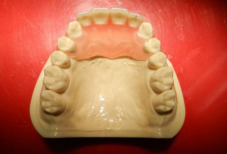 セラミックスの人口歯